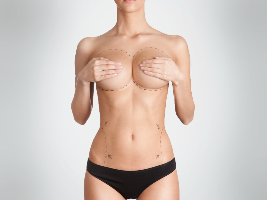mamoplastia-reduccion